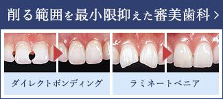 削る範囲を最小限抑えた審美歯科