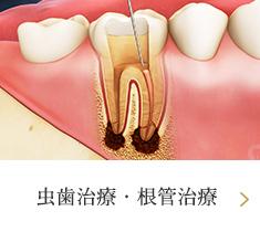 虫歯治療・根管治療