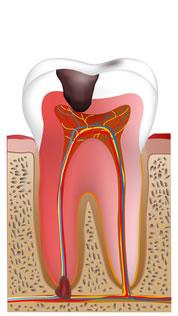 重度な虫歯