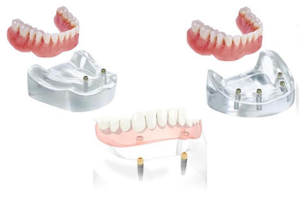 インプラントを使った入れ歯