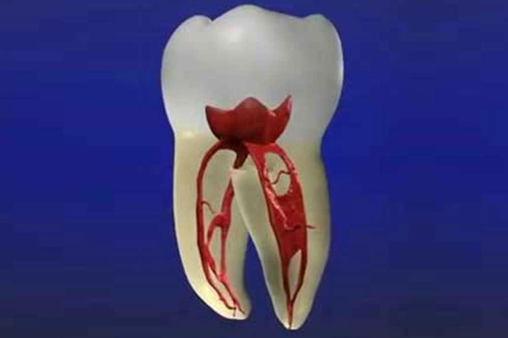 虫歯・歯周病の治療