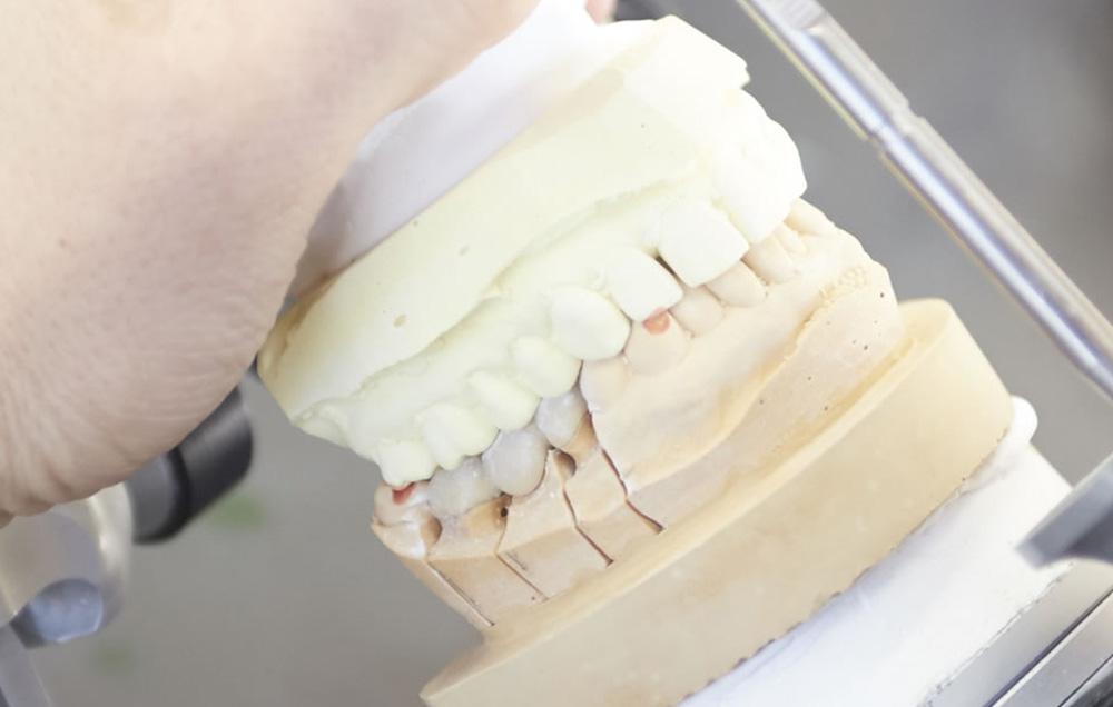 入れ歯の作成