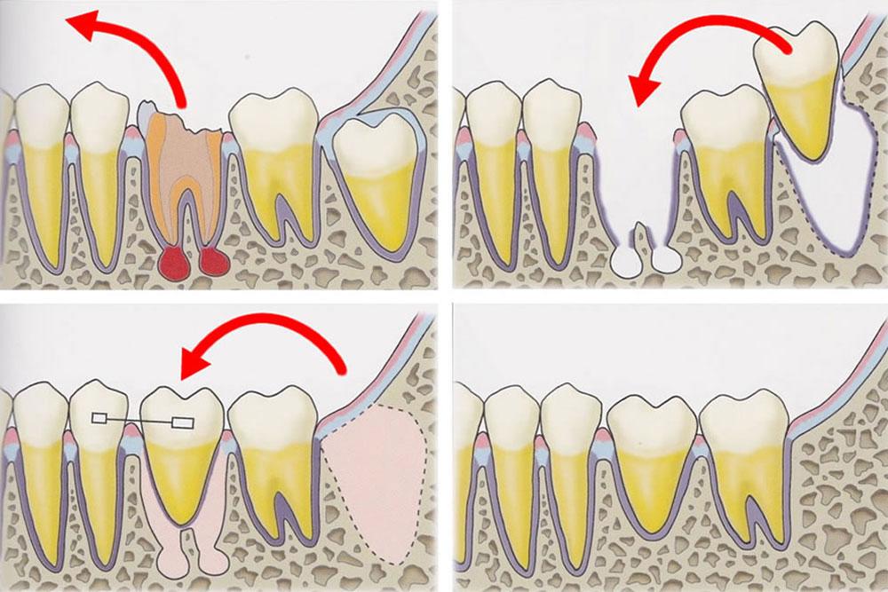 自牙歯牙移植
