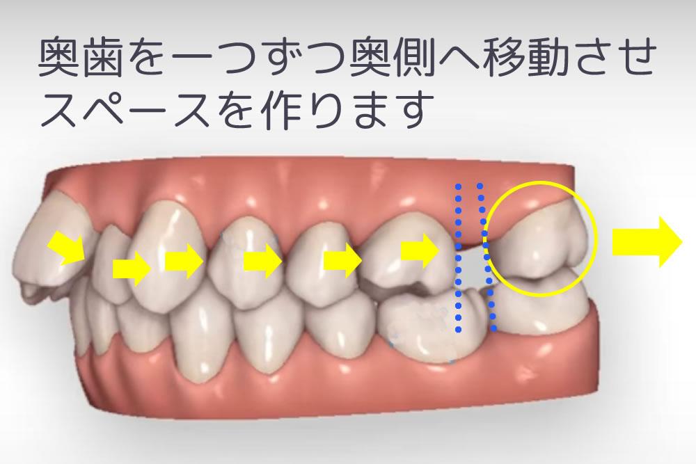 奥歯の遠心移動