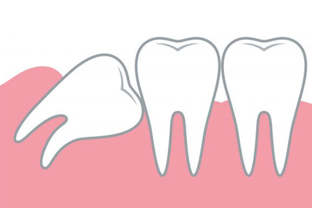 歯列を乱す場合