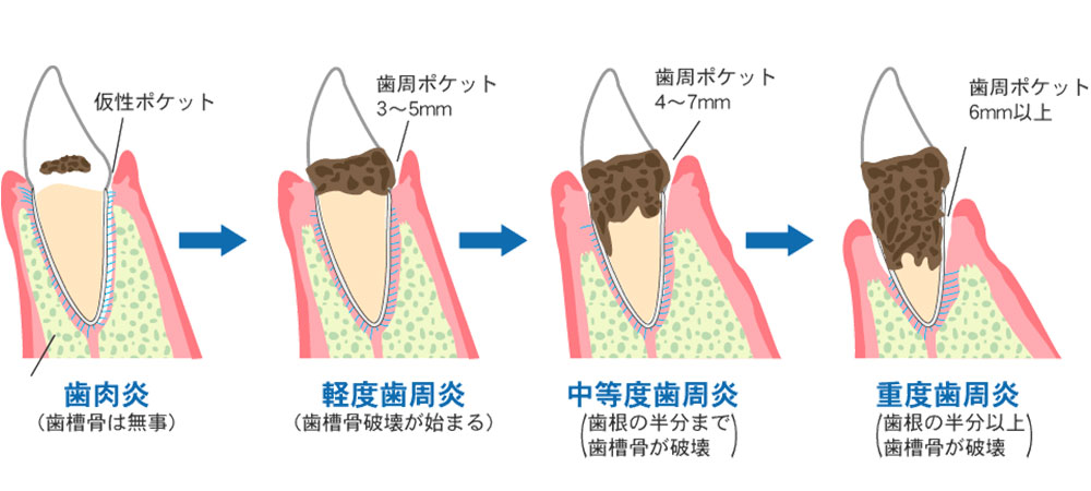 歯周病の早期発見